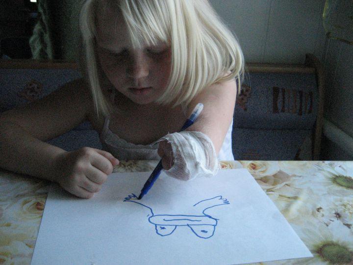 Можно рисовать культёй!, Выставка работ наших детей
